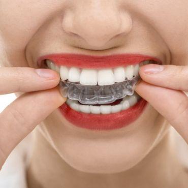 Bruxismo, ¿rechinas los dientes?