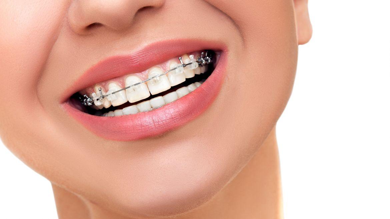 ¿Estás pensando en ponerte ortodoncia?