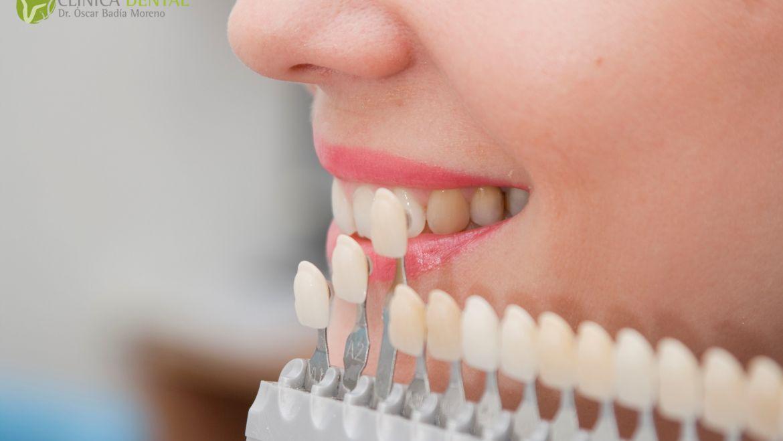 Implantes dentales, recupera tu sonrisa