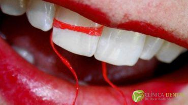 Me sangran las encías ¿es normal?