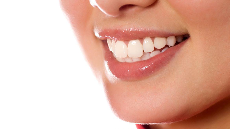 4 Razones por las que realizar un tratamiento de estética dental