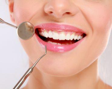 ¿Qué es la gingivitis marginal crónica?