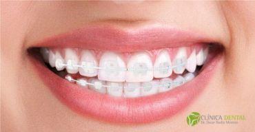 Ritual de higiene diaria con ortodoncia